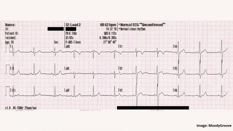 QR code based patient data protection in ECG steganography