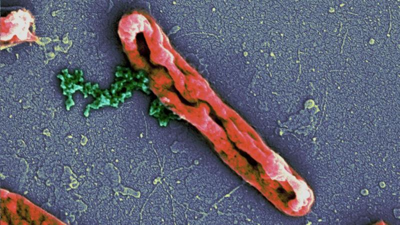 Photo : Deepesh Nagarajan. Antimicrobial peptides disrupting the E. coli cell membrane (orange). The bacterial chromosome (green) can be seen leaking out.
